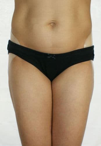 Small Sized Silicone Hip Enhancers   Hour Glass Figure